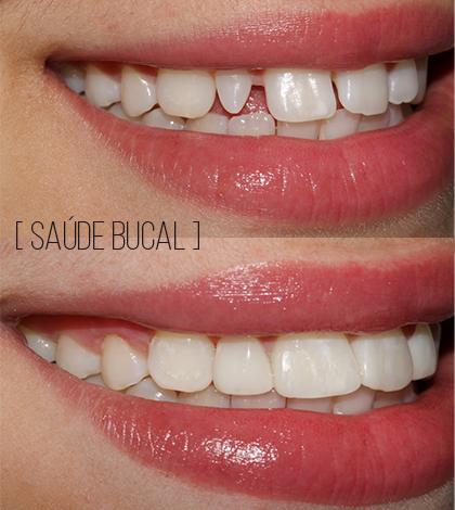 Odontologia Estética Lateral Conóide