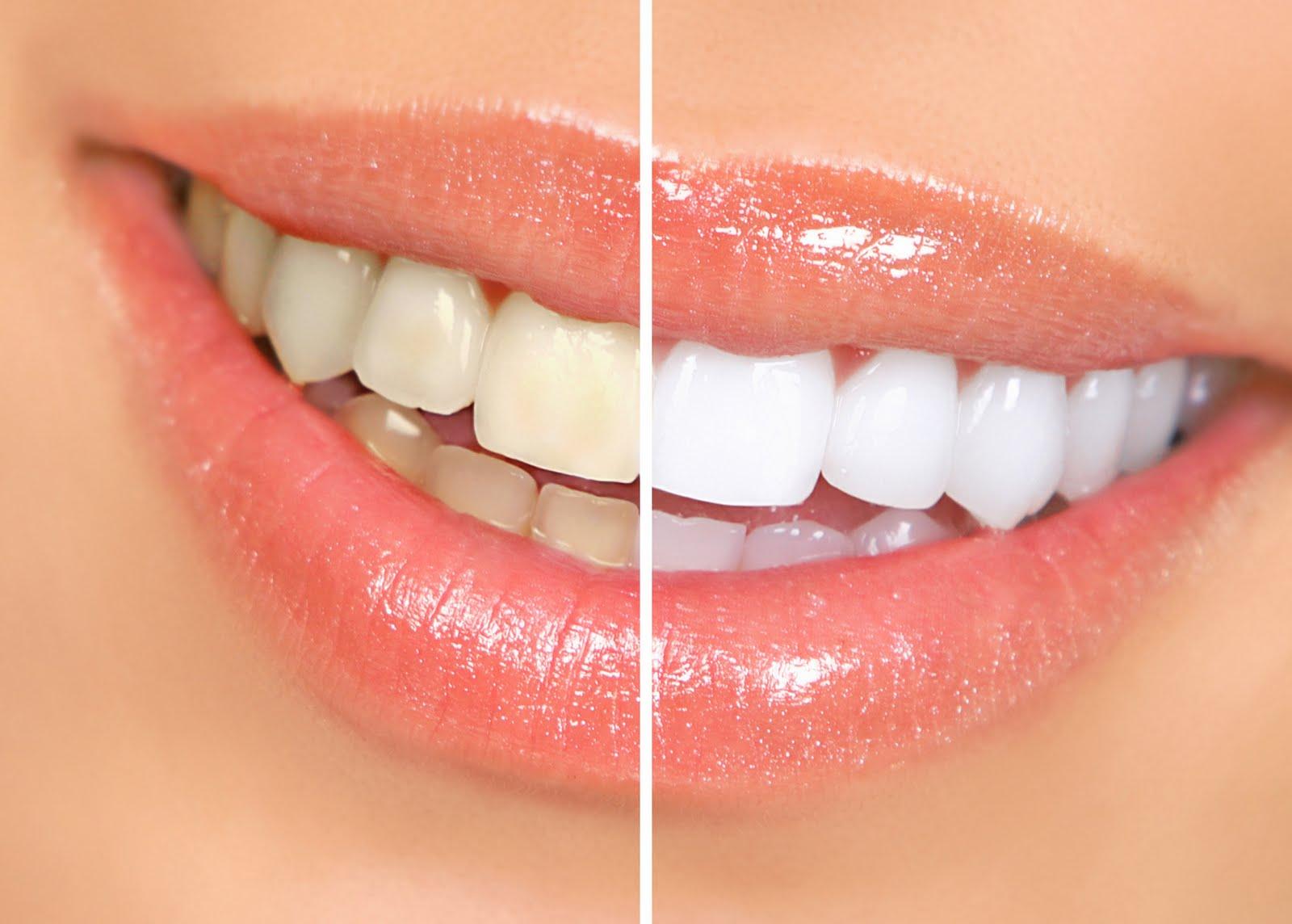 Clareamento Dental – Parte 1