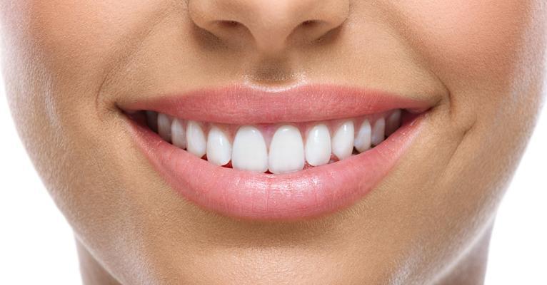 O que é selante dentário?